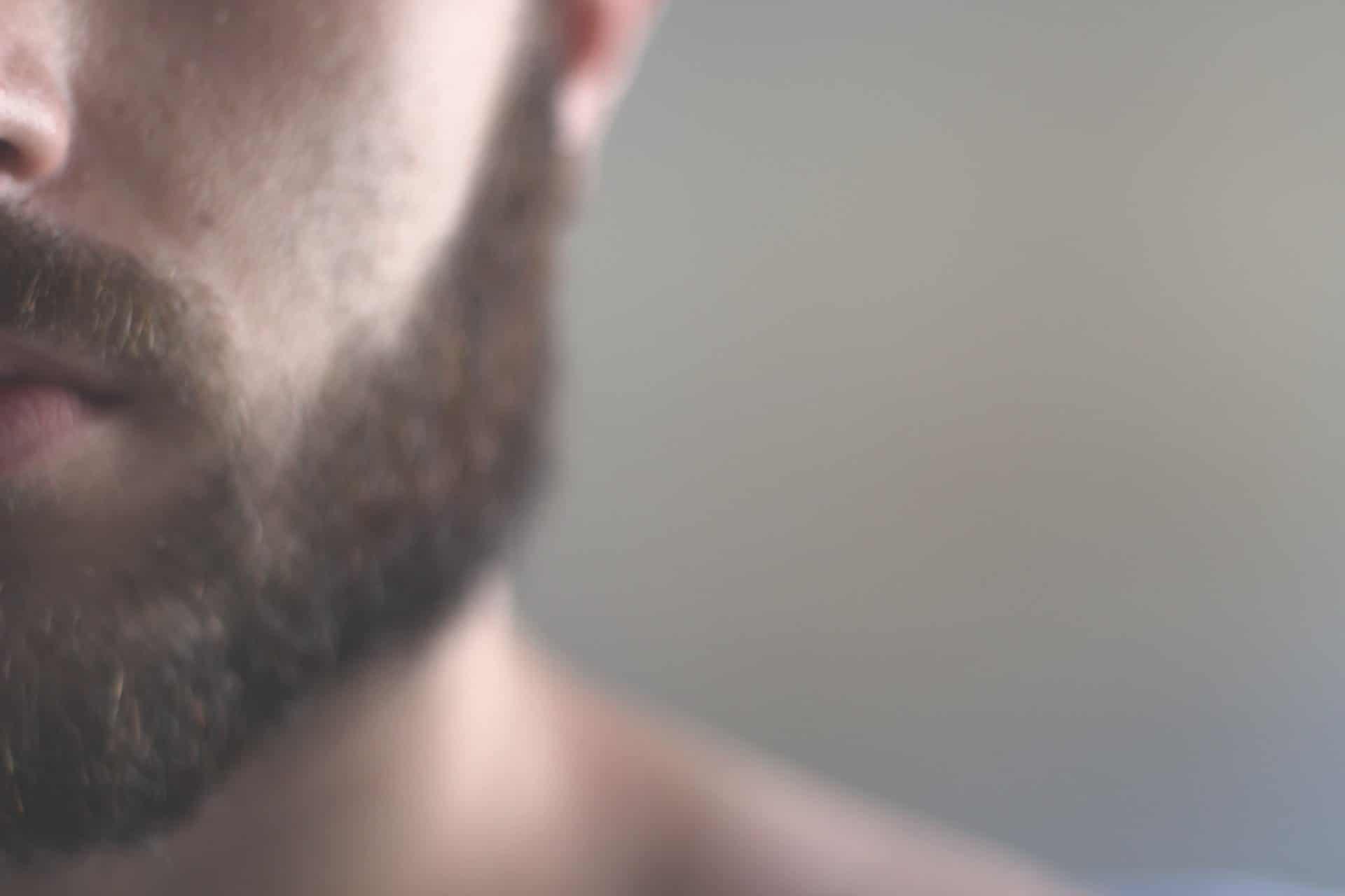 Hilfe bei Schuppen im Bart