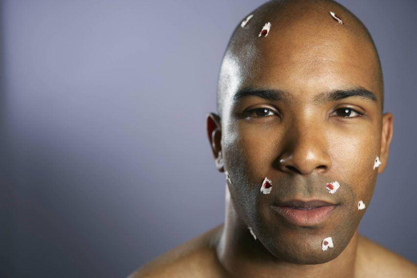 Mann mit Rasierwunden