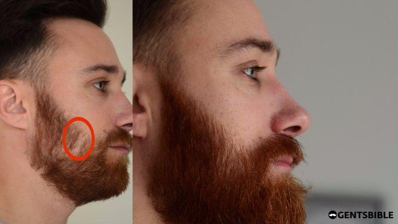 Männer Ohne Bartwuchs