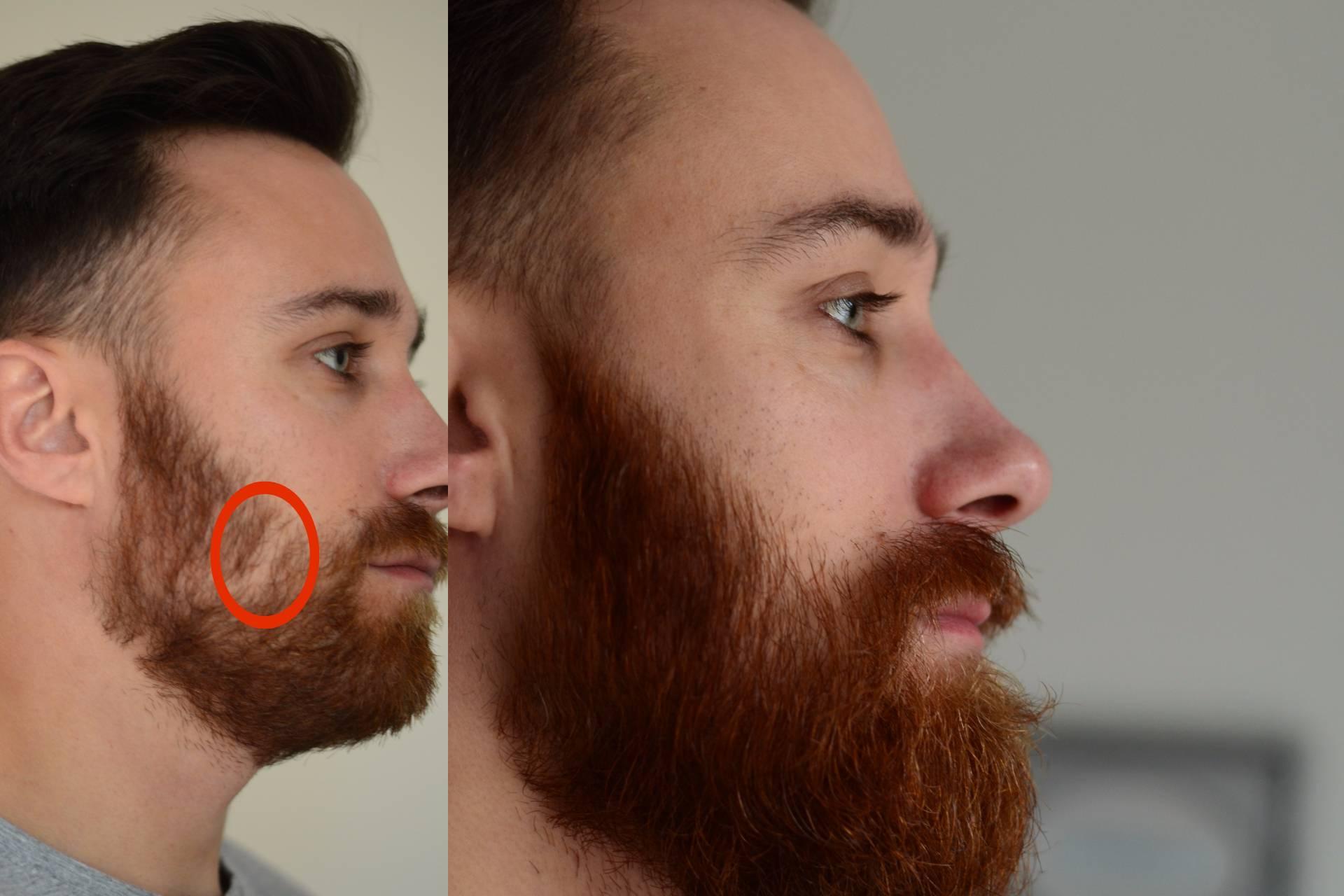10 Tipps Was Du Gegen Lücken Im Bart Tun Kannst